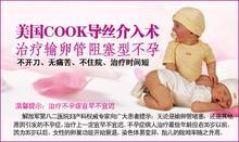 COOK导丝如何治疗不孕症